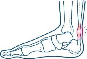 Achillespeesklachten-Achillodynie