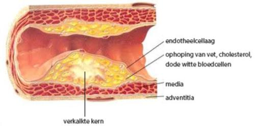 atherosclerose