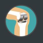 Revalidatie knieprothese Deurne Fysio Jansen