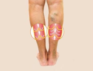 Veneuze aandoening spatader