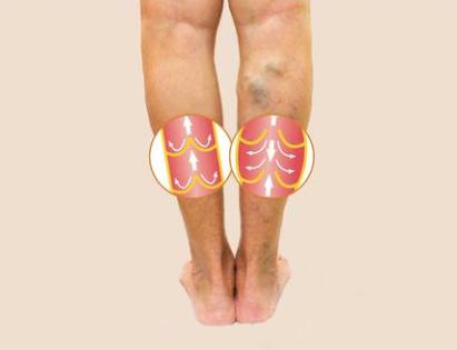 Veneuze aandoening spataders