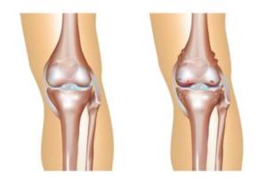 Artrose knie? l Advies en behandeling l Fysio Jansen Deurne