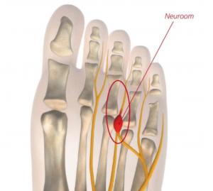Morton Neuroom l Oorzaak en behandeling l Deurne