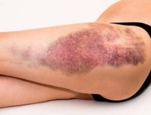 Spiercontusie l Oorzaak en behandeling l Fysio Deurne