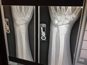 Röntgen | Wat is een röntgenfoto? | Uitleg Fysio Jansen
